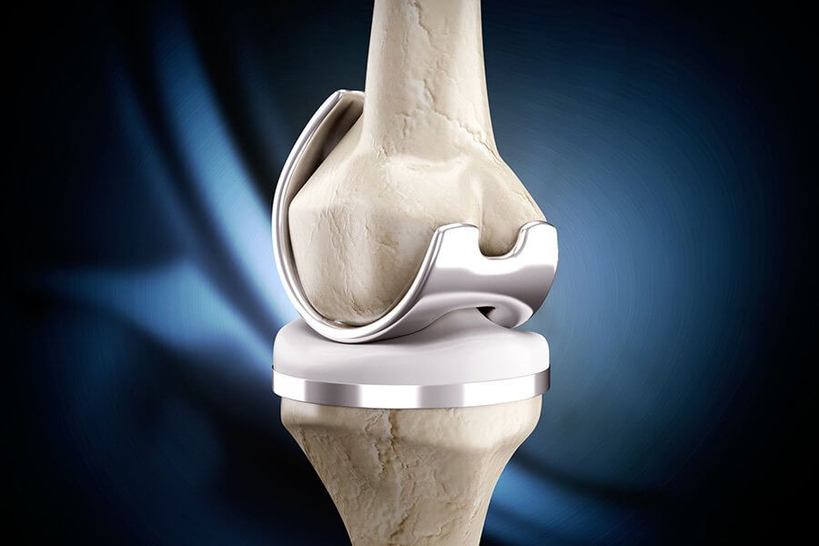 סוגי משתלים שונים למפרק הברך